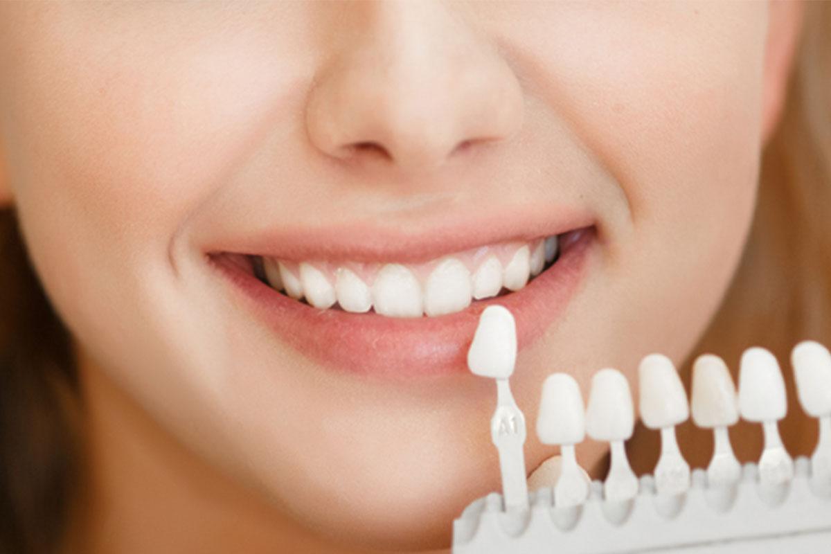 odontoiatria estetica lembo antonietta