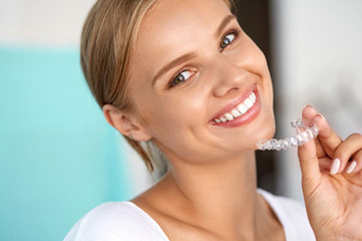ortodonzia invisibile lembo campagna