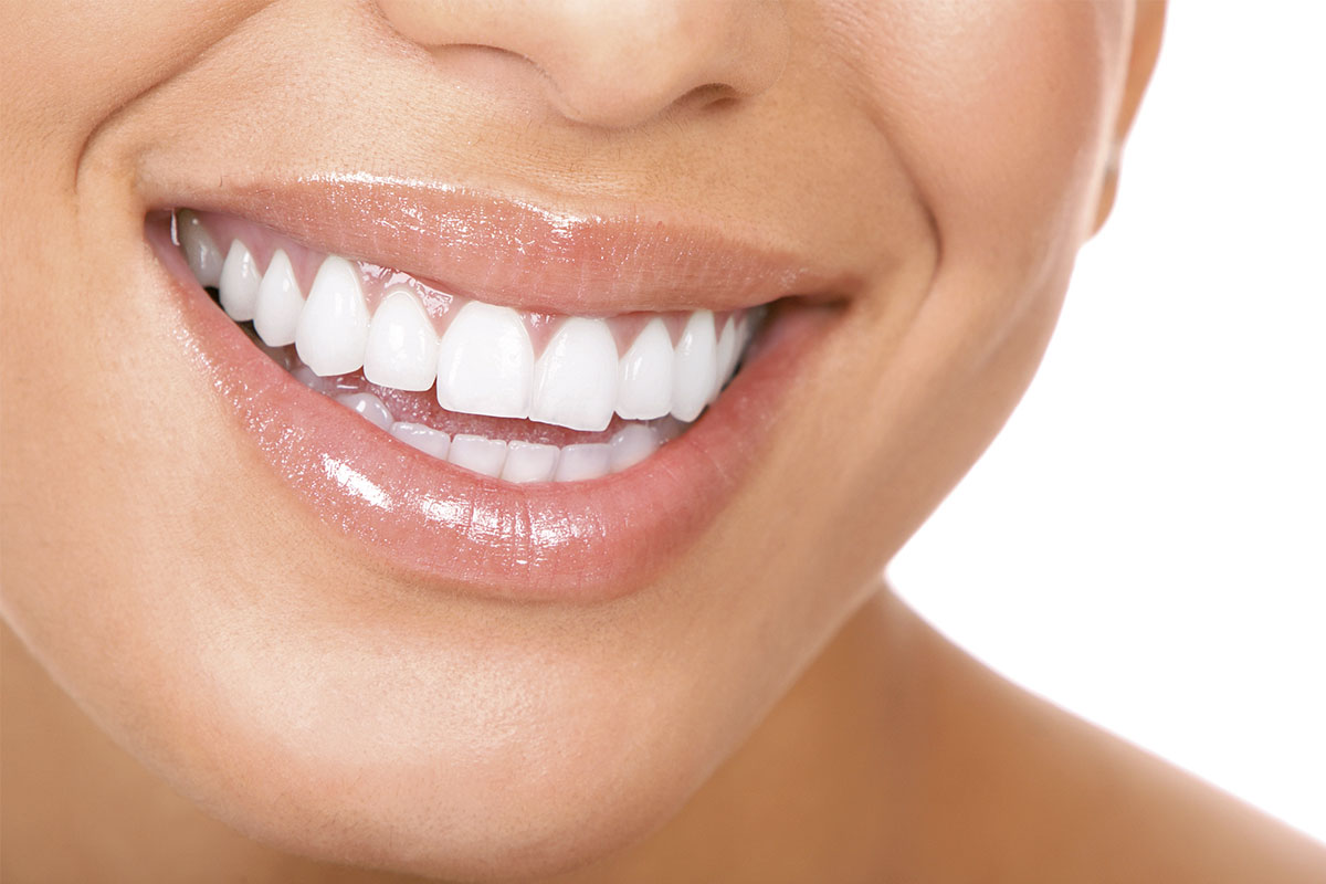 parodontologia dentista lembo campagna